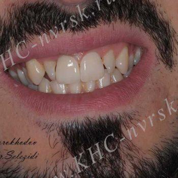 Восстановление переднего зуба после травмы
